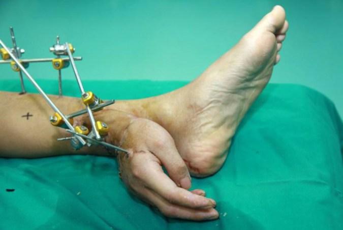 Китайские врачи успешно провели операцию по пересадке руки с ноги